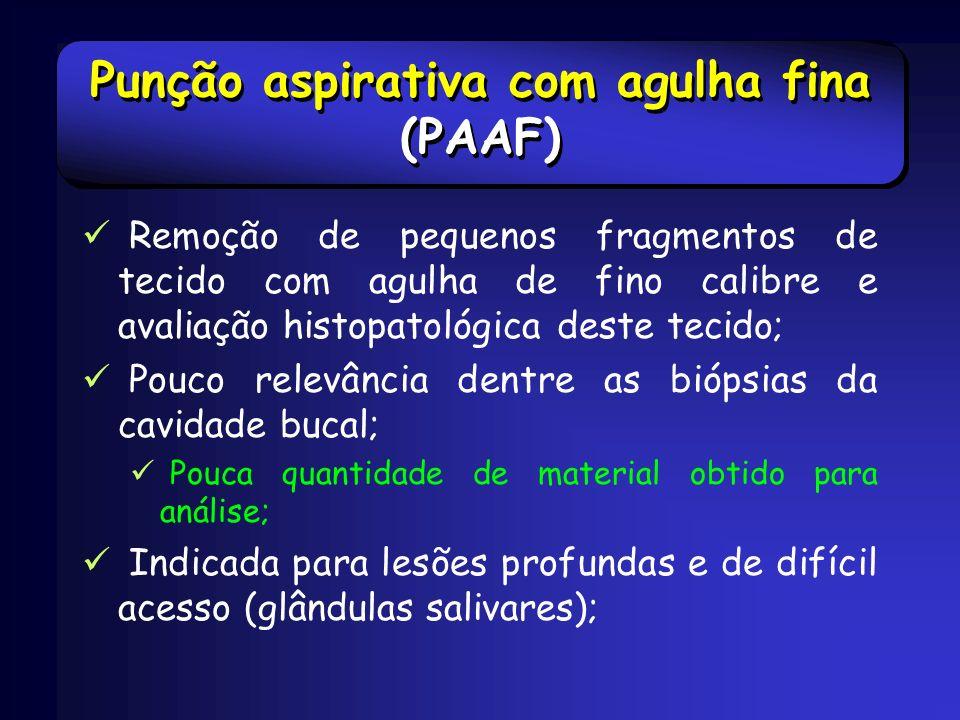 Punção aspirativa com agulha fina (PAAF)