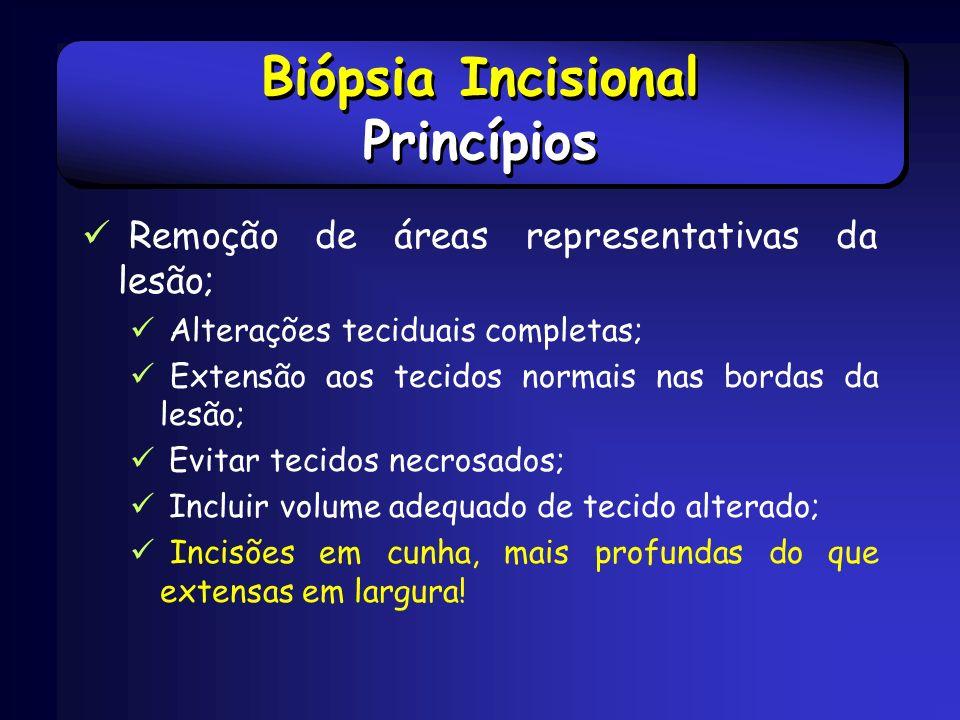 Biópsia Incisional Princípios
