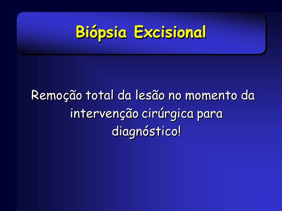 Biópsia Excisional Remoção total da lesão no momento da intervenção cirúrgica para diagnóstico!