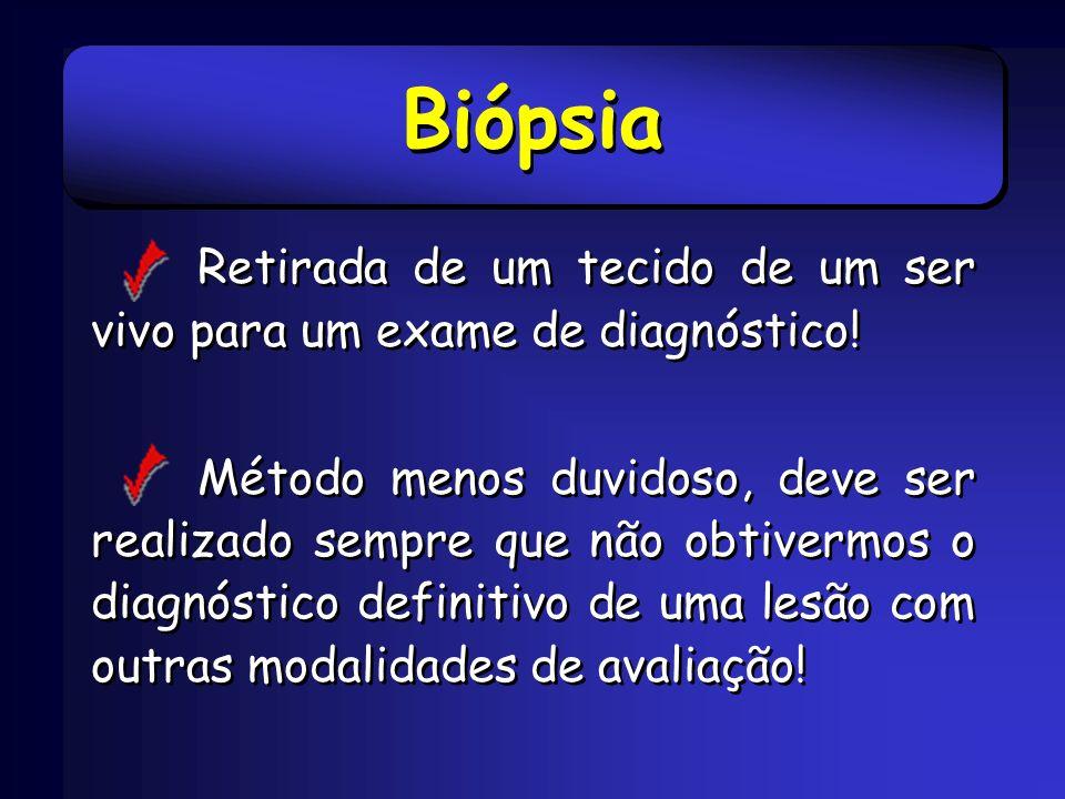 BiópsiaRetirada de um tecido de um ser vivo para um exame de diagnóstico!