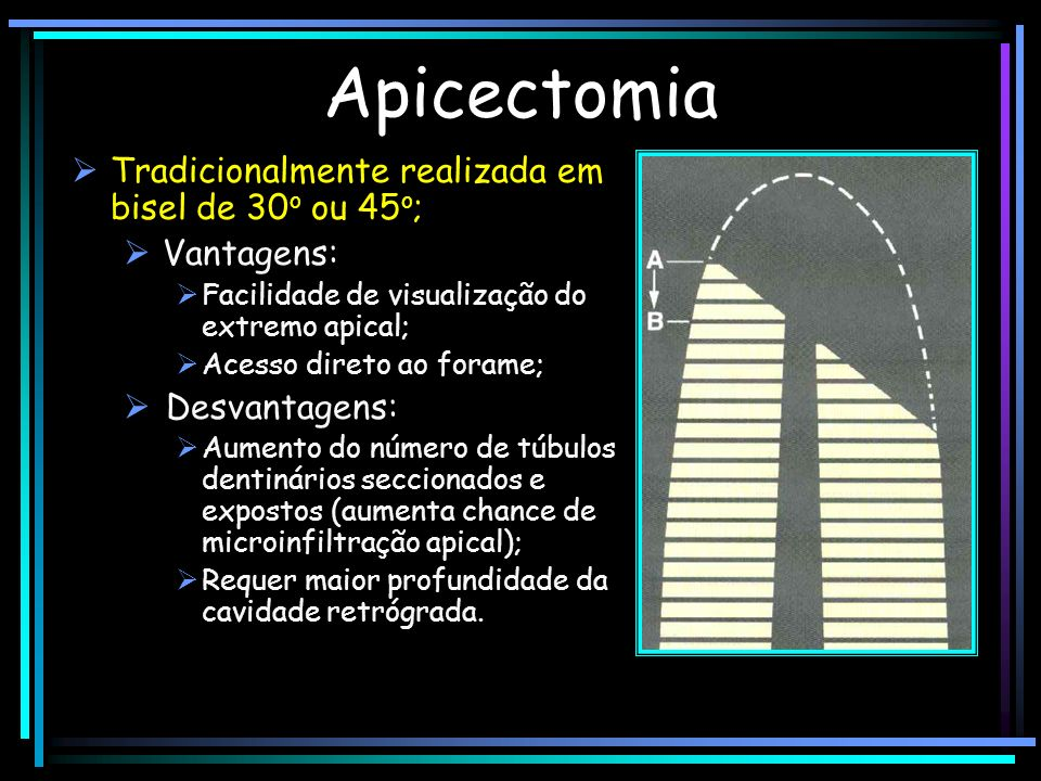 Apicectomia Tradicionalmente realizada em bisel de 30o ou 45o;