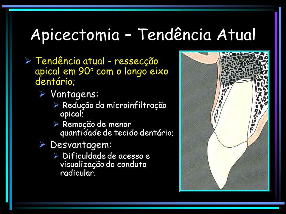 Apicectomia – Tendência Atual