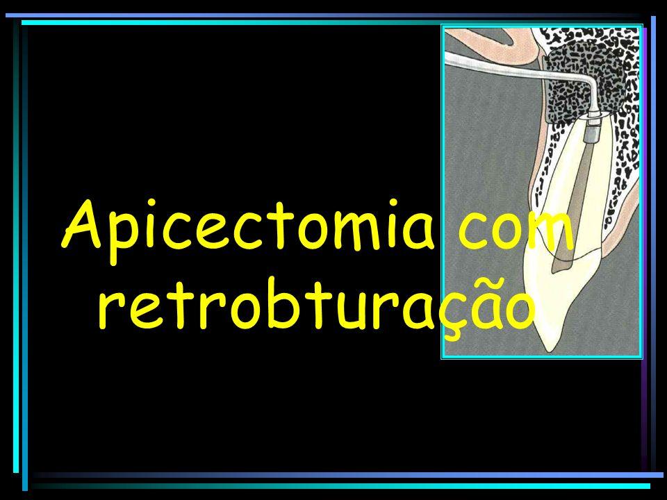 Apicectomia com retrobturação