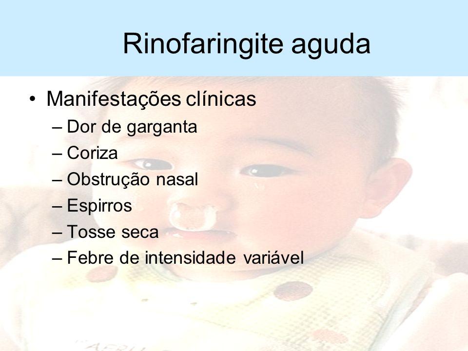 Rinofaringite aguda Manifestações clínicas Dor de garganta Coriza