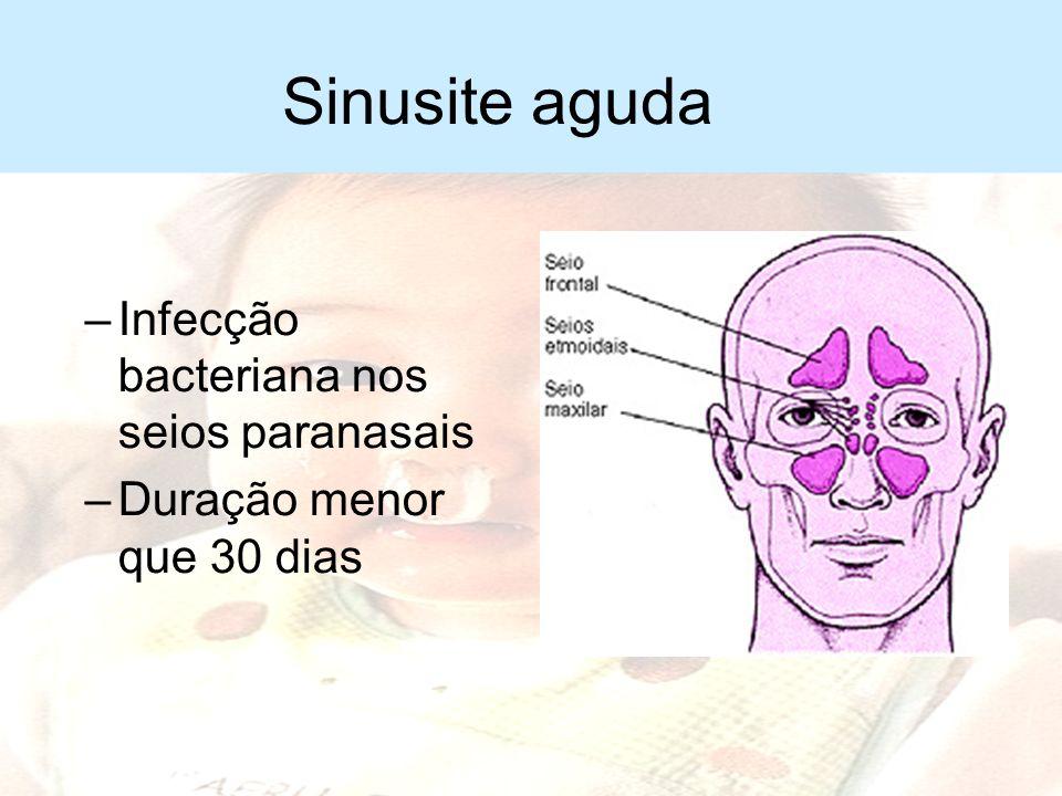 Sinusite aguda Infecção bacteriana nos seios paranasais