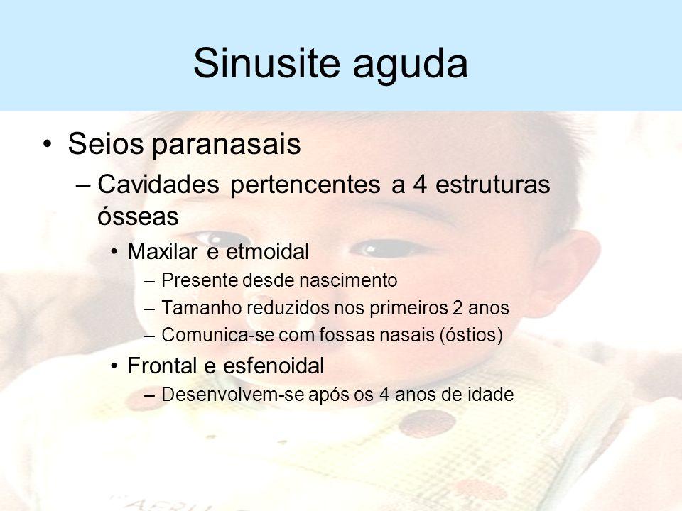 Sinusite aguda Seios paranasais