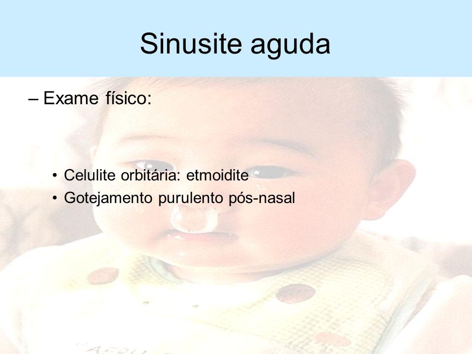 Sinusite aguda Exame físico: Celulite orbitária: etmoidite