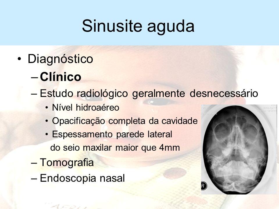 Sinusite aguda Diagnóstico Clínico