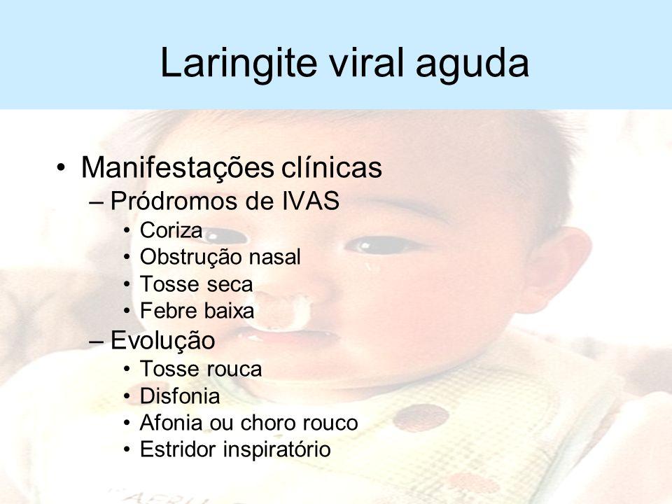 Laringite viral aguda Manifestações clínicas Pródromos de IVAS