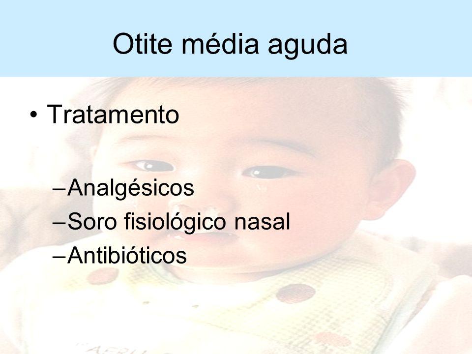 Otite média aguda Tratamento Analgésicos Soro fisiológico nasal