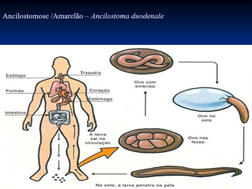 Ancilostomose /Amarelão – Ancilostoma duodenale