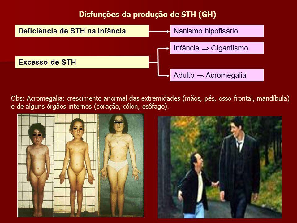 Disfunções da produção de STH (GH)