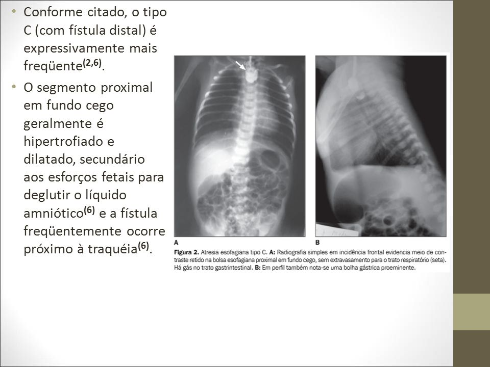 Conforme citado, o tipo C (com fístula distal) é expressivamente mais freqüente(2,6).