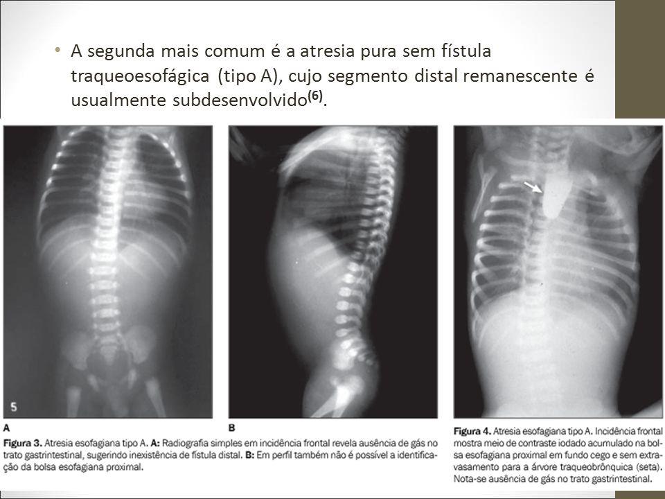 A segunda mais comum é a atresia pura sem fístula traqueoesofágica (tipo A), cujo segmento distal remanescente é usualmente subdesenvolvido(6).