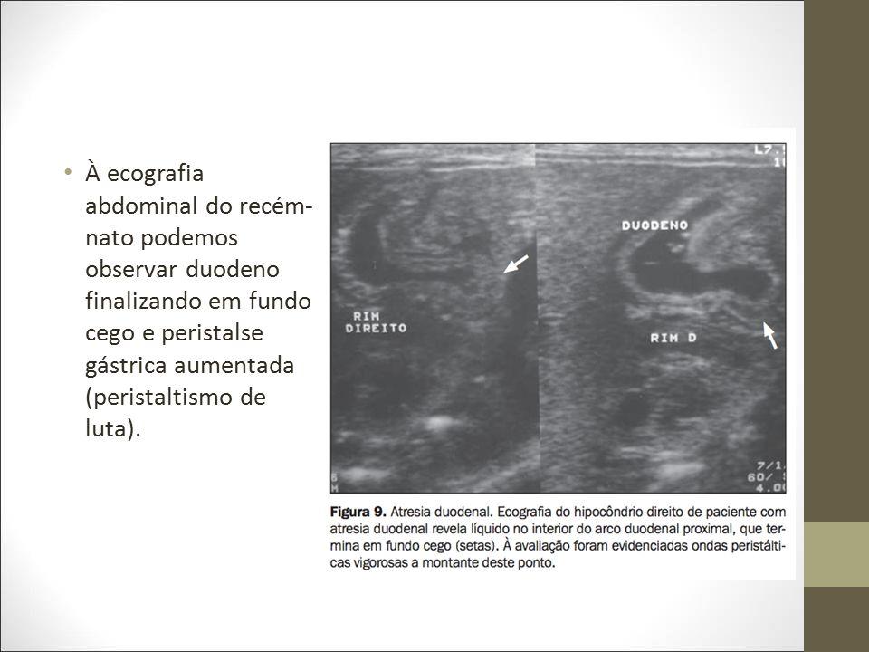 À ecografia abdominal do recém-nato podemos observar duodeno finalizando em fundo cego e peristalse gástrica aumentada (peristaltismo de luta).