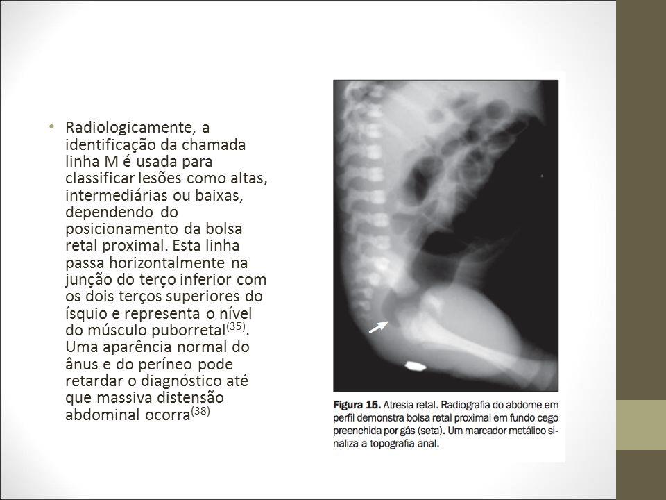 Radiologicamente, a identificação da chamada linha M é usada para classificar lesões como altas, intermediárias ou baixas, dependendo do posicionamento da bolsa retal proximal.