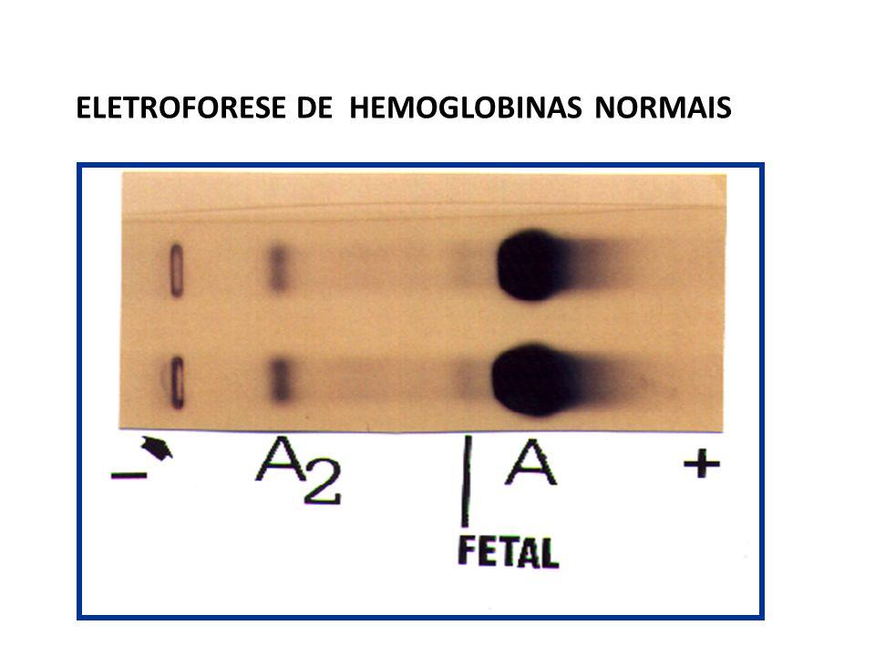 ELETROFORESE DE HEMOGLOBINAS NORMAIS