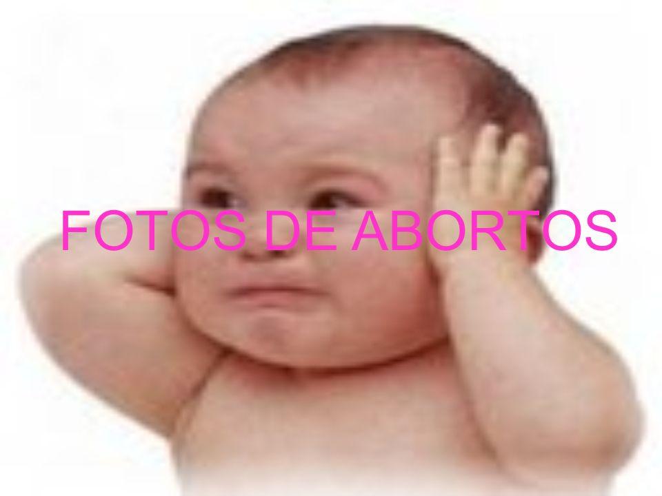 FOTOS DE ABORTOS