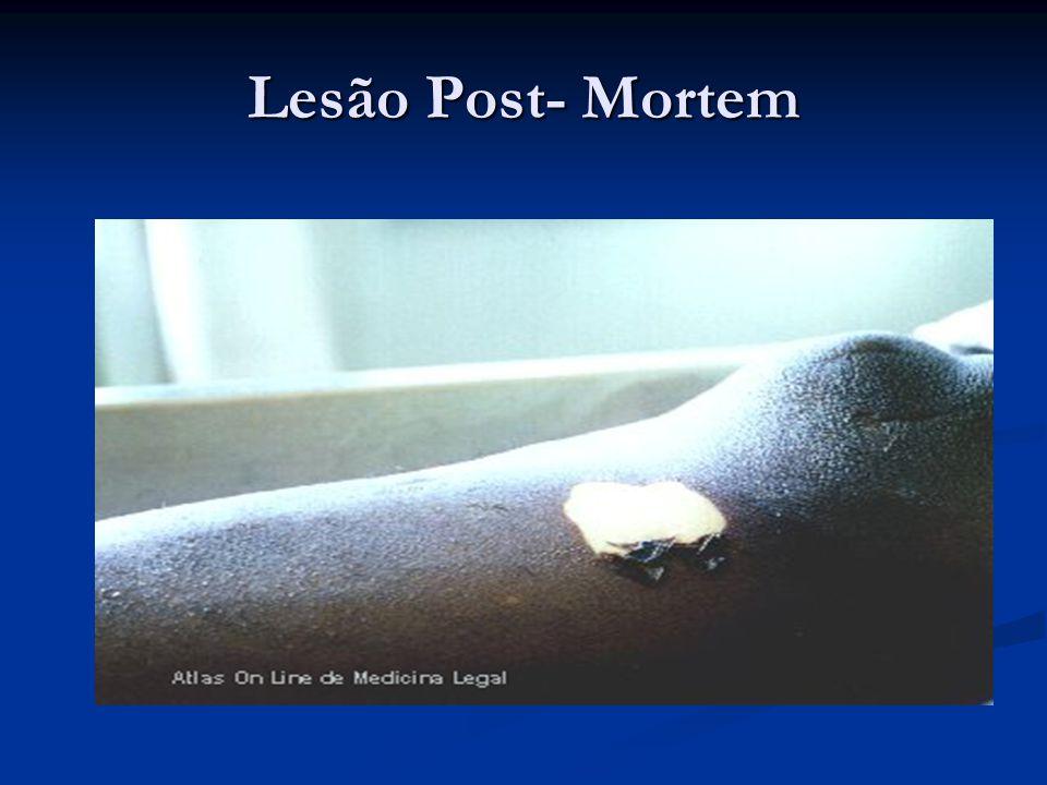 Lesão Post- Mortem