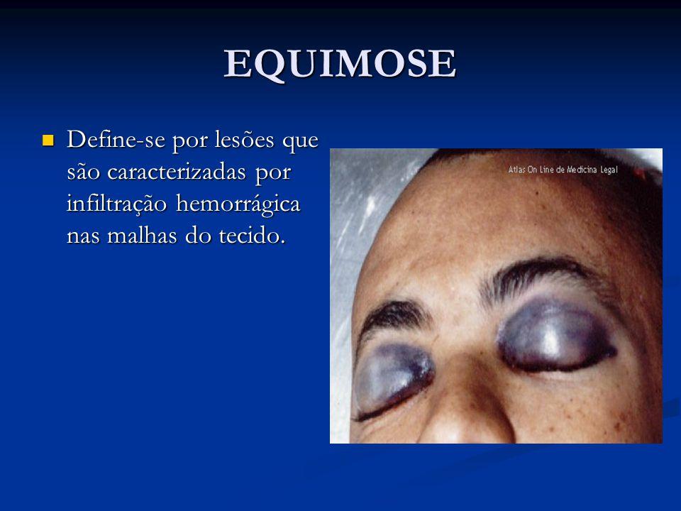 EQUIMOSE Define-se por lesões que são caracterizadas por infiltração hemorrágica nas malhas do tecido.