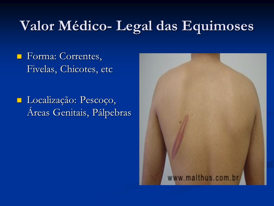 Valor Médico- Legal das Equimoses