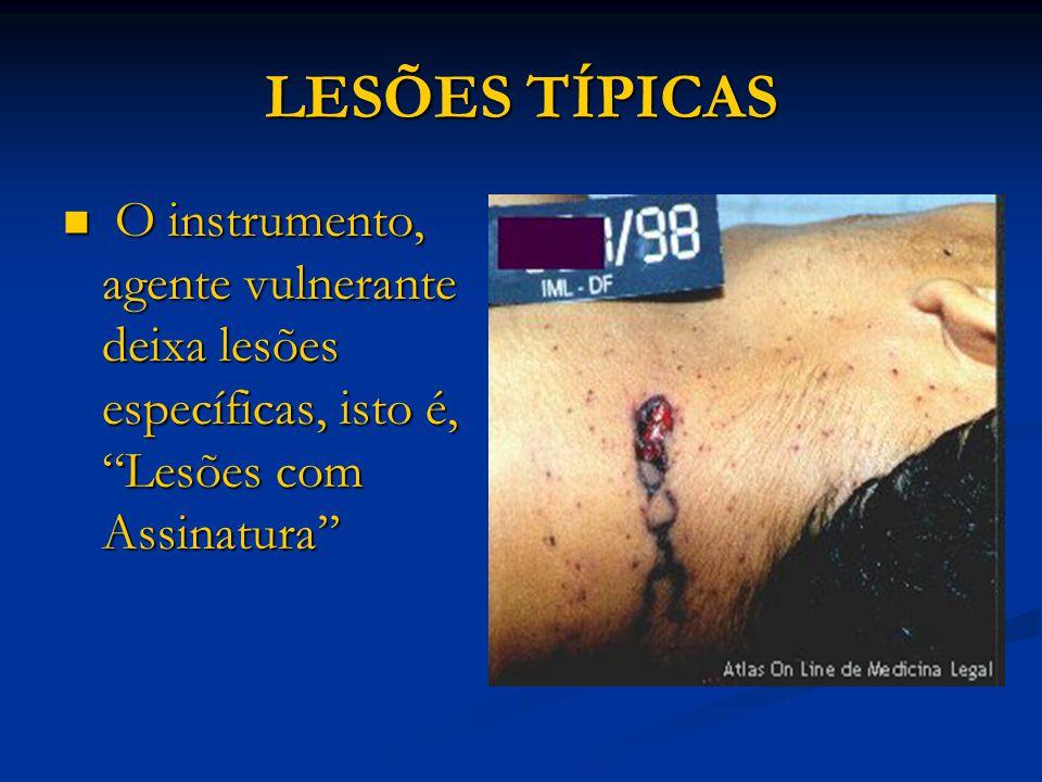 LESÕES TÍPICAS O instrumento, agente vulnerante deixa lesões específicas, isto é, Lesões com Assinatura''