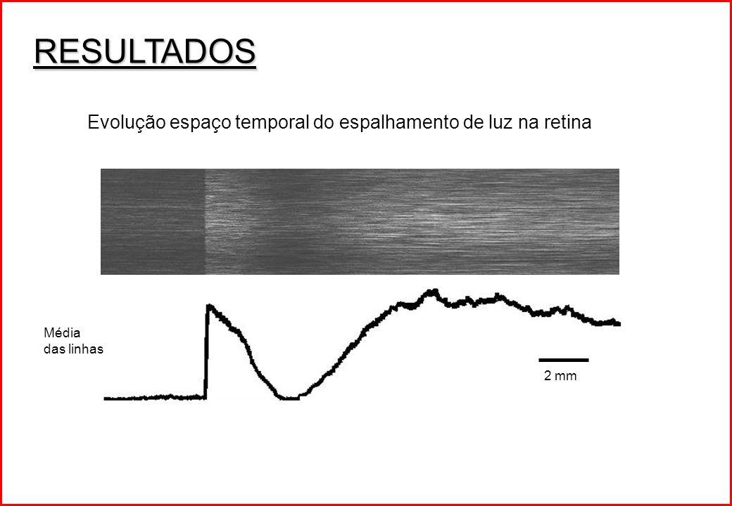 RESULTADOS Evolução espaço temporal do espalhamento de luz na retina