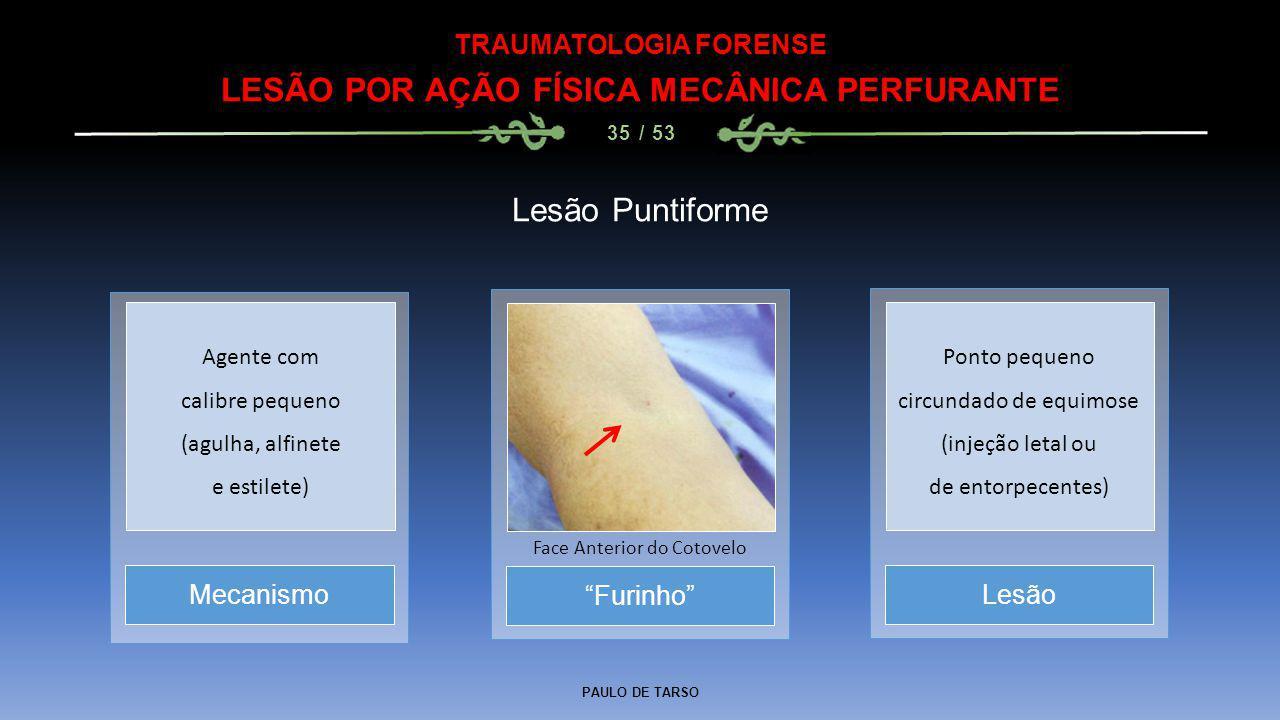 TRAUMATOLOGIA FORENSE LESÃO POR AÇÃO FÍSICA MECÂNICA PERFURANTE