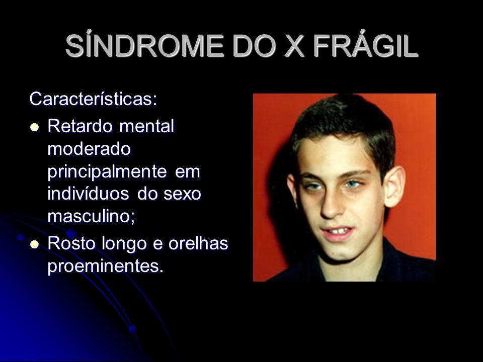 SÍNDROME DO X FRÁGIL Características: