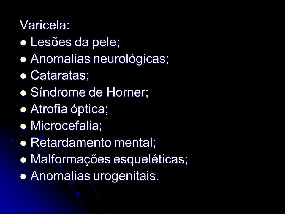 Varicela:Lesões da pele; Anomalias neurológicas; Cataratas; Síndrome de Horner; Atrofia óptica; Microcefalia;
