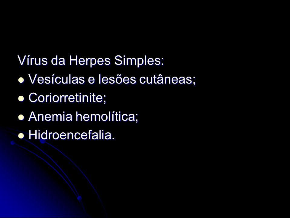 Vírus da Herpes Simples: