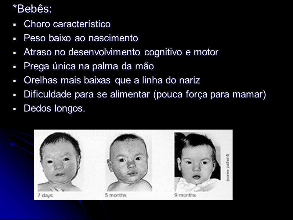 *Bebês: Choro característico Peso baixo ao nascimento