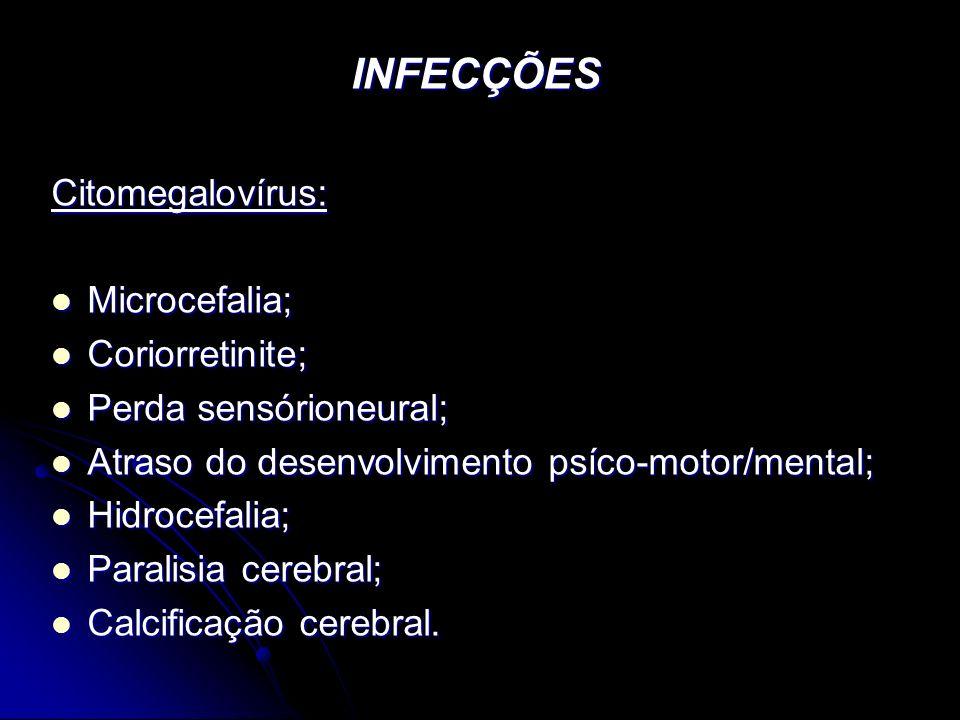 INFECÇÕES Citomegalovírus: Microcefalia; Coriorretinite;