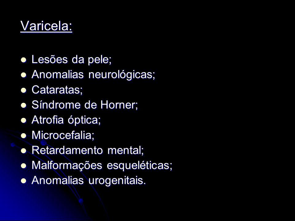Varicela: Lesões da pele; Anomalias neurológicas; Cataratas;