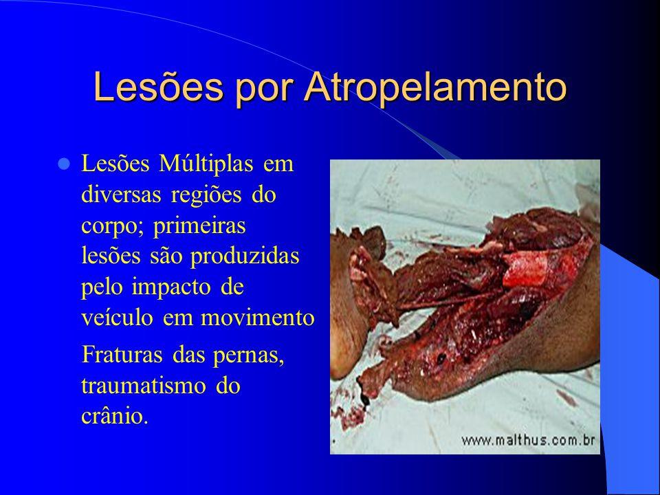 Lesões por Atropelamento