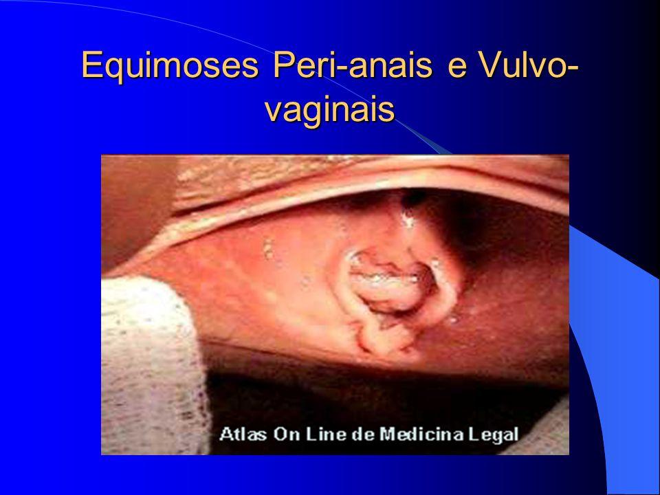 Equimoses Peri-anais e Vulvo-vaginais