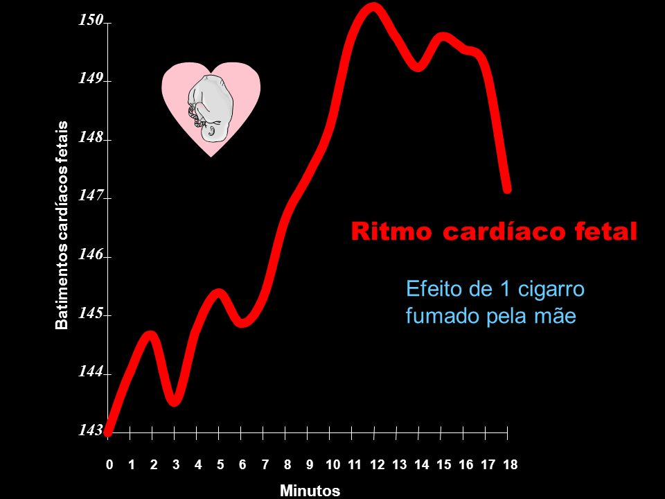 Batimentos cardíacos fetais