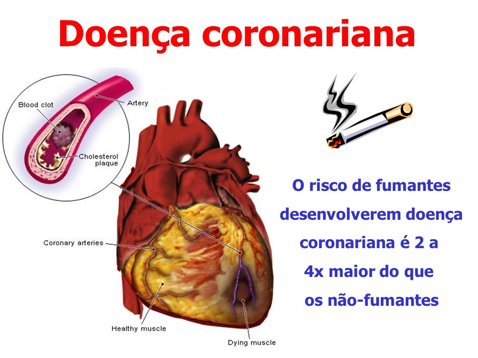 Doença coronariana O risco de fumantes desenvolverem doença