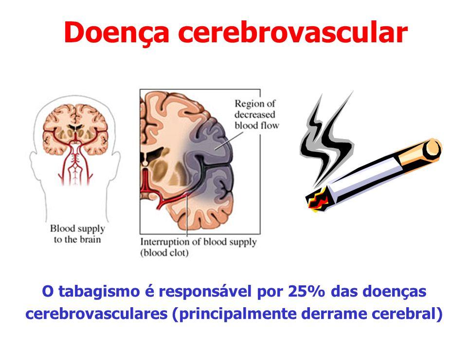 Doença cerebrovascular