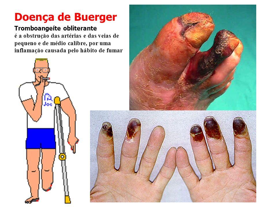 Doença de Buerger Tromboangeíte obliterante