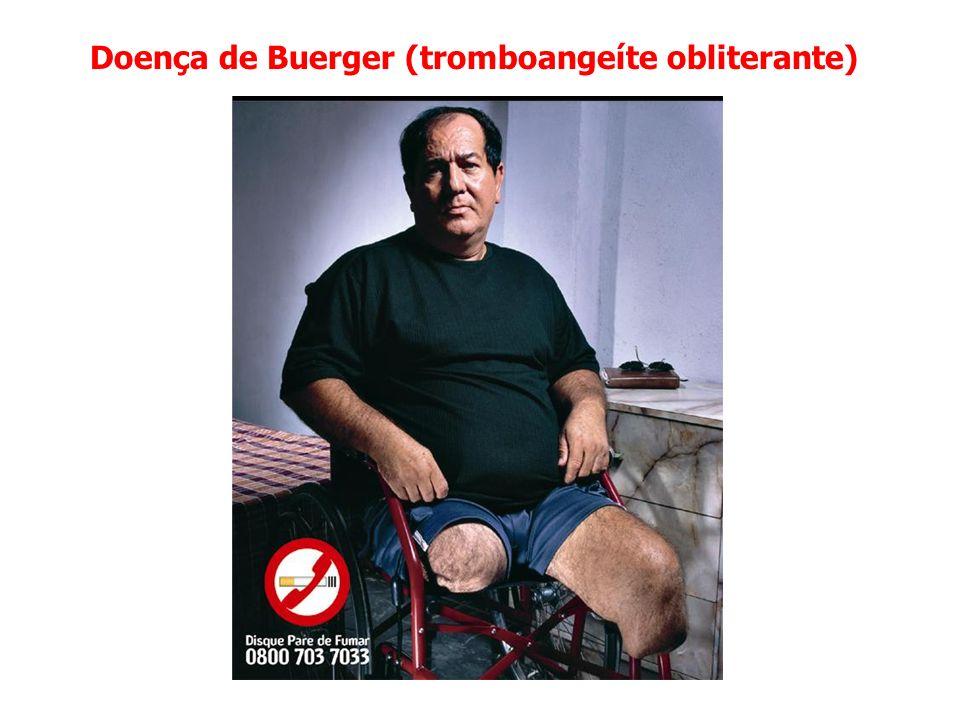 Doença de Buerger (tromboangeíte obliterante)