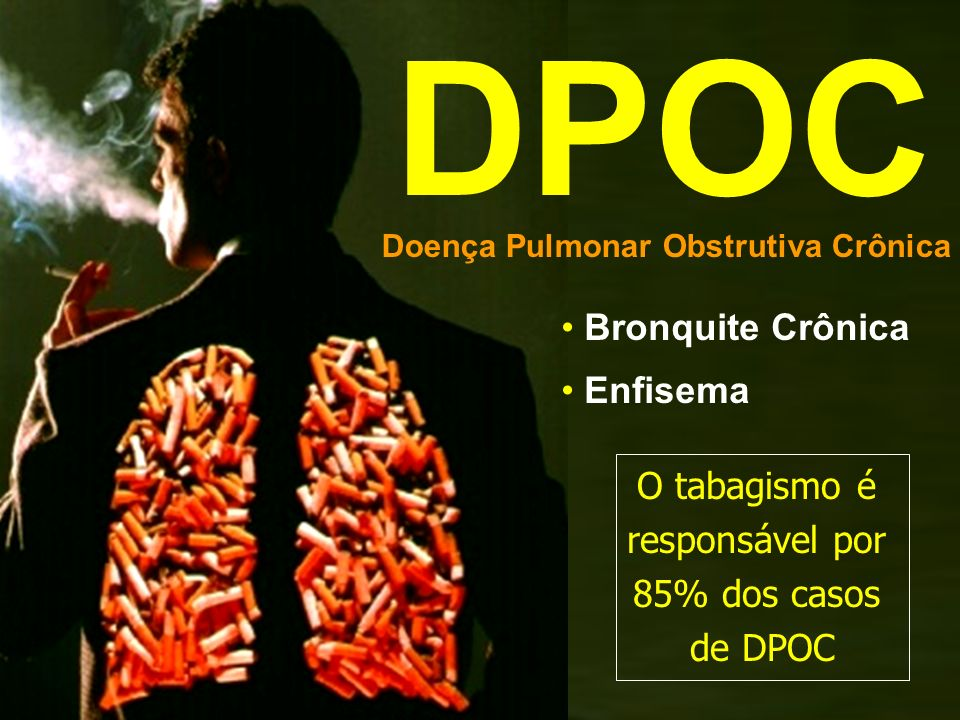 DPOC Bronquite Crônica Enfisema O tabagismo é responsável por