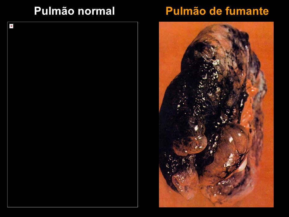 Pulmão normal Pulmão de fumante