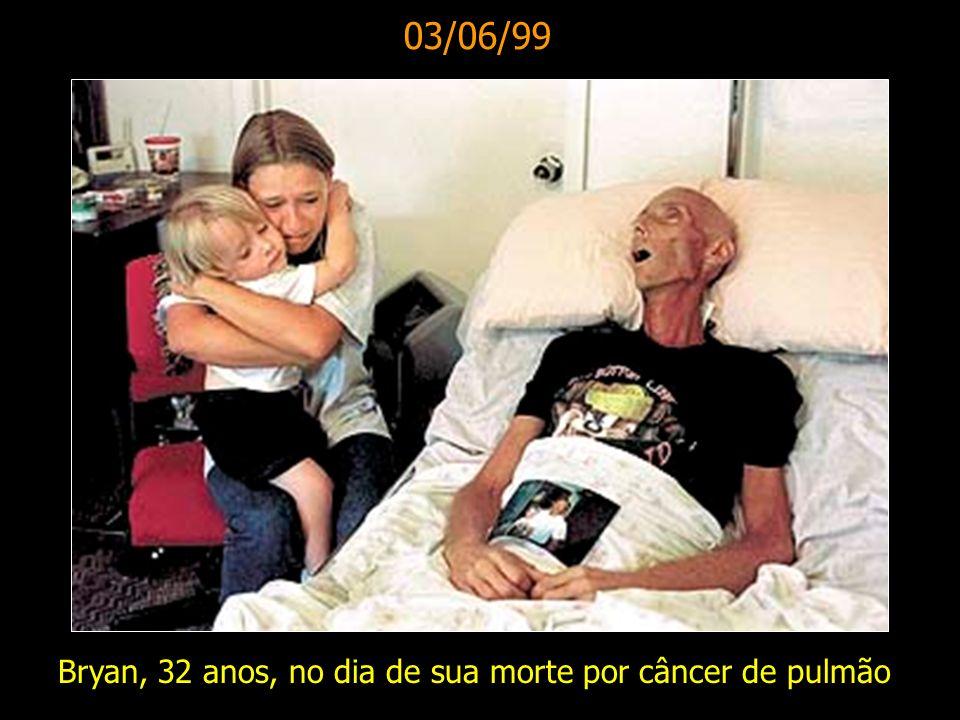 03/06/99 Bryan, 32 anos, no dia de sua morte por câncer de pulmão