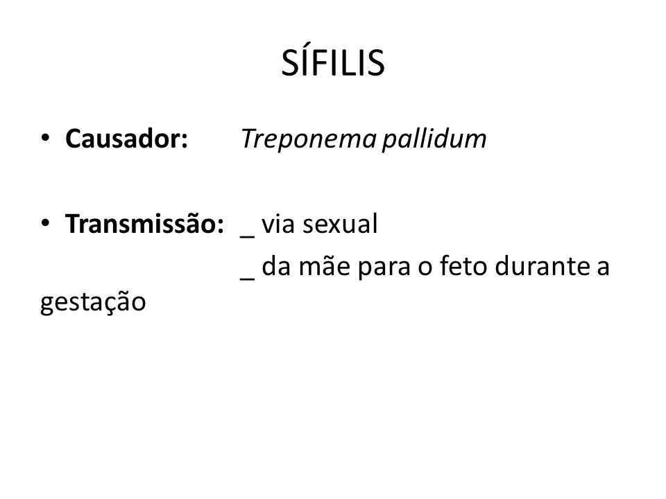 SÍFILIS Causador: Treponema pallidum Transmissão: _ via sexual