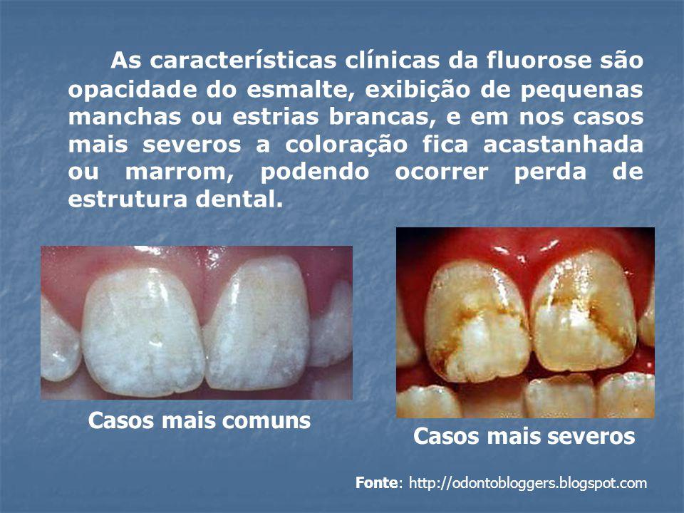 As características clínicas da fluorose são opacidade do esmalte, exibição de pequenas manchas ou estrias brancas, e em nos casos mais severos a coloração fica acastanhada ou marrom, podendo ocorrer perda de estrutura dental.