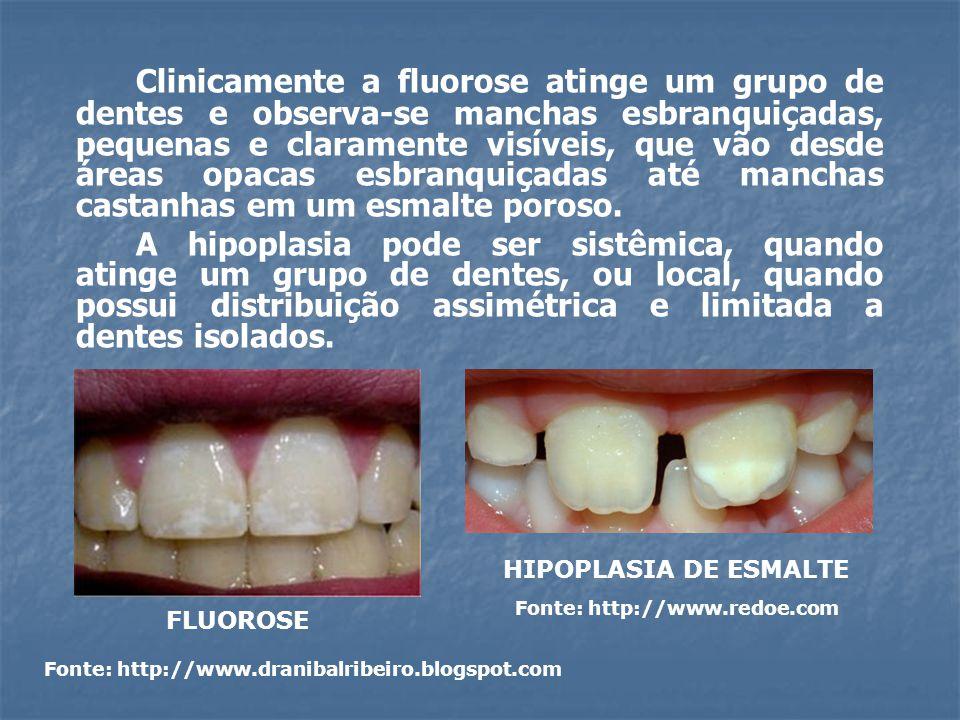 Clinicamente a fluorose atinge um grupo de dentes e observa-se manchas esbranquiçadas, pequenas e claramente visíveis, que vão desde áreas opacas esbranquiçadas até manchas castanhas em um esmalte poroso.