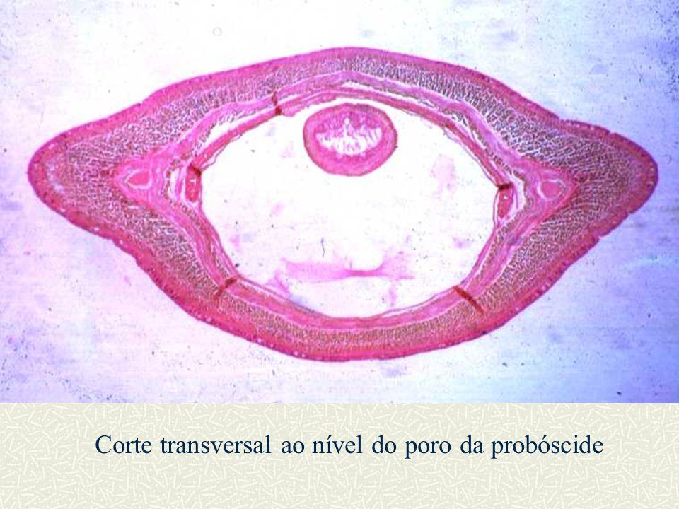 Corte transversal ao nível do poro da probóscide
