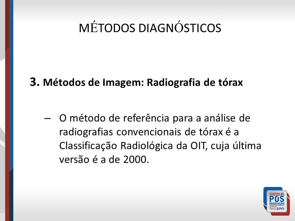 MÉTODOS DIAGNÓSTICOS 3. Métodos de Imagem: Radiografia de tórax
