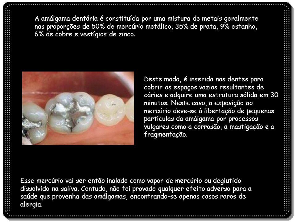 A amálgama dentária é constituída por uma mistura de metais geralmente nas proporções de 50% de mercúrio metálico, 35% de prata, 9% estanho, 6% de cobre e vestígios de zinco.